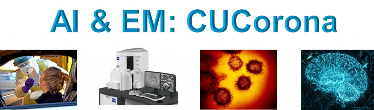 Searching for Dutch Electron Microscopy companies and researchers for rapid coronavirus diagnostics